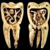 Горячий воск, исцеление луной и другие странные методы, которыми лечили зубы