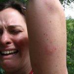 Причины, почему комары выберут именно вас