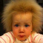 Из-за генетической аномалии девочка не может расчесать свои волосы
