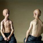 10 генетических мутаций, встречающихся у людей