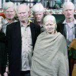 Белая ворона, или как живется семье альбиносов в Индии