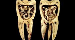 Горячий воск, исцеление луной и другие странные методы, которыми лечили зубы наши предки