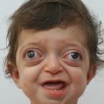 Врачам удалось исправить лицо мальчика. Только взгляните, какой он сейчас!